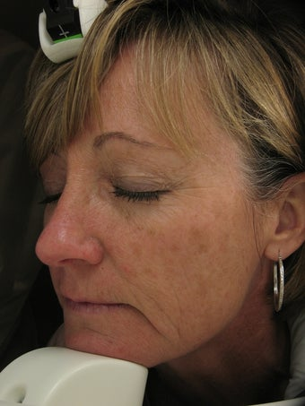 Fraxel re:pair CO laser resurfacing for fine lines and pigmentation before 121890