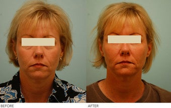 Injectable Fillers (Restylane/Perlane) before 136778