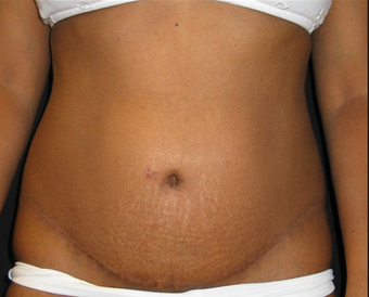 Abdominoplasty after 458934