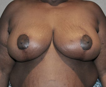 Breast Reduction after 287439