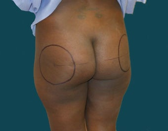 Buttock Augmentation 639292