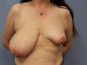 Breast Reconstruction before 589935