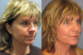 Lite Lift, Brow Lift, Neck Lift, Eyelid Lift, Blue Peel before 523329