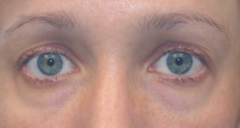 Restylane to tear trough deformity of lower lids before 240187
