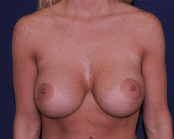 breast implant revision after 334113