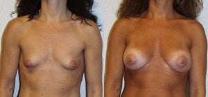 "Breast Augmentation Patient is 39 years old. height 5'5"" weight 128 lbs. 300-330 cc implants"