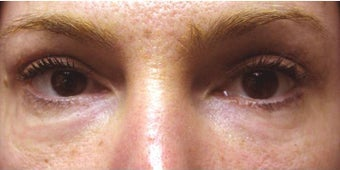 Upper Blepharoplasty  after 175259
