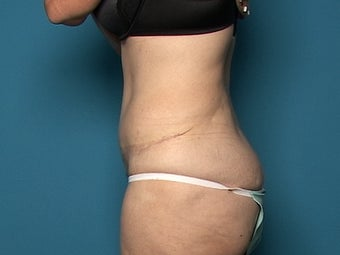 Abdominoplasty after 134585