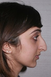 Asian Rhinoplasty 448659