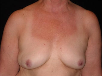 Breast implant removal after 566066