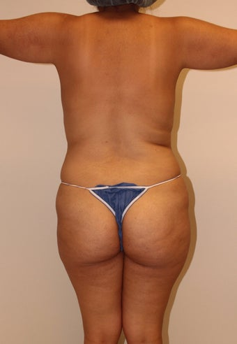 Brazilian butt lift 360623
