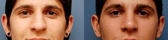 Rhinoplasty, Ethnic Iranian after 346238