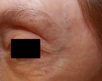 Crow's feet wrinkles after 508943
