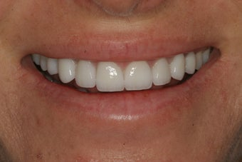 Porcelain Veneers after 213072