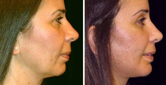 48 year old female, chin implant before 630602