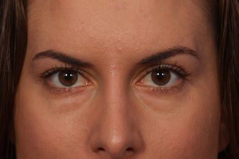 Restylane to Tear Troughs (under eyes) before 308348