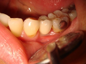 Crown placement on dental implant