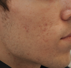 Acne Scarring before 426027