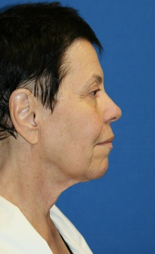Facelift with Extended Necklift, Browlift, Fat Transfer, Upper Blepharoplasty, and Skin Pinch 625450