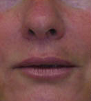 Face and Brow Lift and Eyelid Surgery 149153