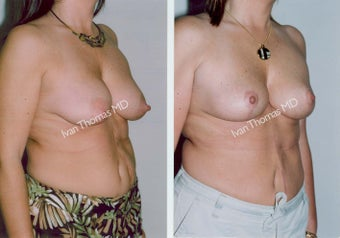 Mastopexy-Breast Lift before 243724