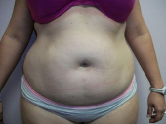 Liposuction before 258664
