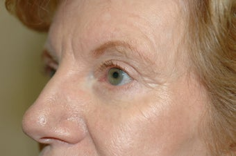 Cheek augmentation with cheek lift, ptosis repair, and elimination of festoons 341472