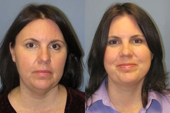 Lite Lift™, liposuction of the neck after 523705