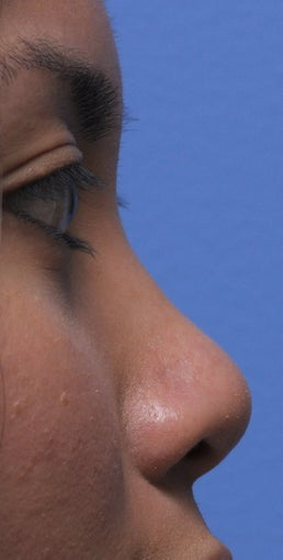 Non Surgical Rhinoplasty before 307850