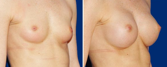 Breast Implants after 494487