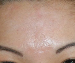 Before and After Acne Scar Treatment with Subcision and cO2 Laser Resurfacing  after 562085