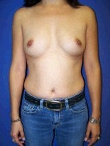 Breast Augmentation before 418008