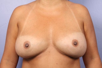 Breast Implant Revision before 622840
