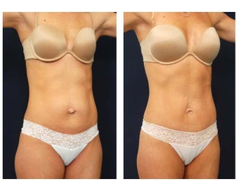 Abdominoplasty - Tummy Tuck after 392958