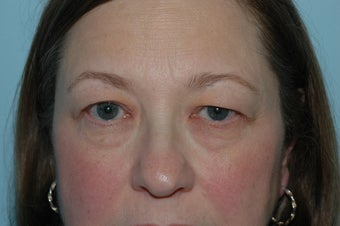 Upper Blepharoplasty (Eyelid Lift) before 118341