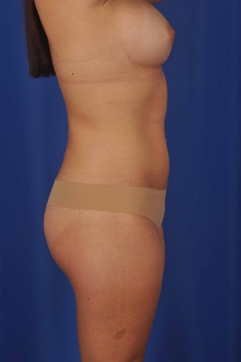 56 Year-Old Woman with Bilateral Breast Reconstruction 647197