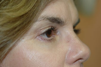 Midface lift, upper and lower eyelid surgery, Hetter resurfacing chemical peel after 433480