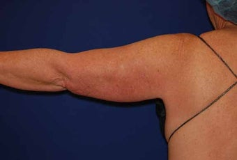 Liposuction Upper Arm before 513399