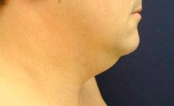 Male Neck Lipo  before 374874