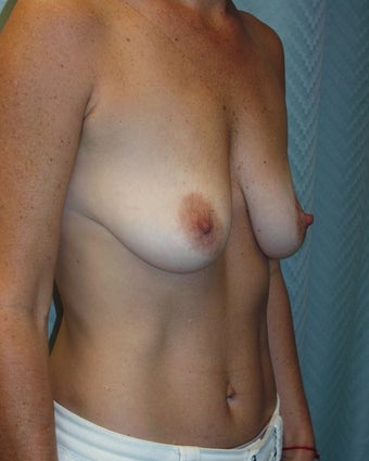 Breast Augmentation before 118253