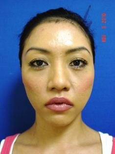 Chin Augmentation/rhinoplasty before 383867