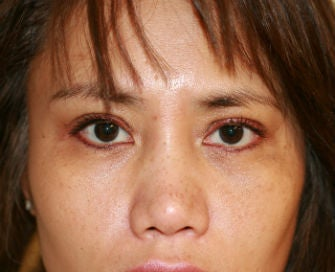 Upper eyelid blepharoplasty after 269086