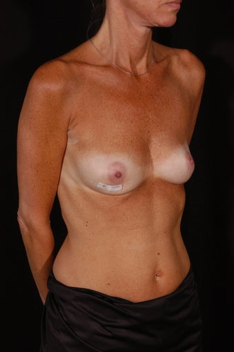 Breast Reconstruction with Implants before 357323