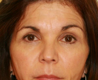 Lower eyelid blepharoplasty after 378926