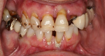 Implant supported overdentures 480893