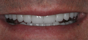 Full mouth dental reconstruction after 90862