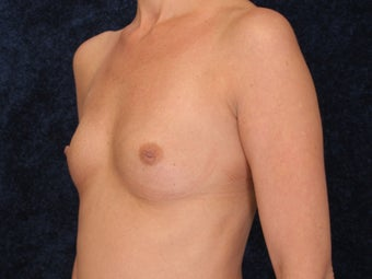 Breast Augmentation before 321993