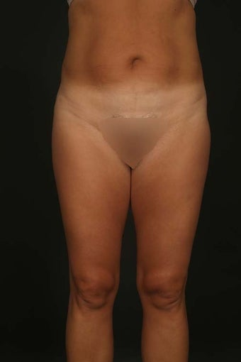 Liposuction after 288295