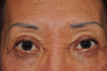 Permanent Eyeliner before 493461