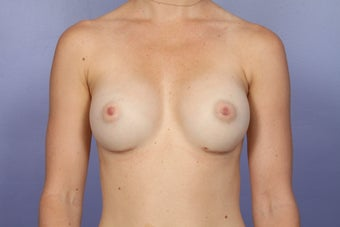 Breast Augmentation after 467306